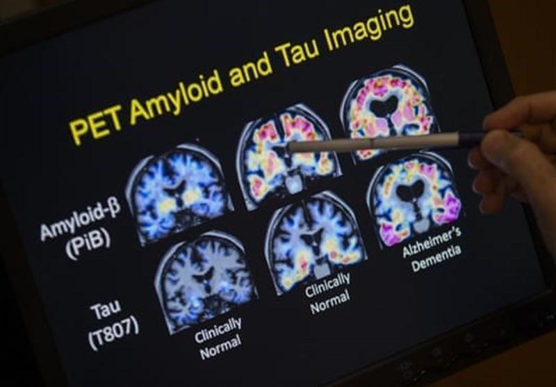 تشخیص آلزایمر با آزمایش خون!