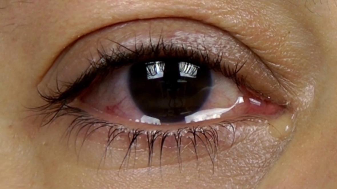 10 درمان خانگی برای کاهش تورم چشم بعد از گریه