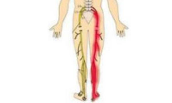 طولانی ترین عصب بدن